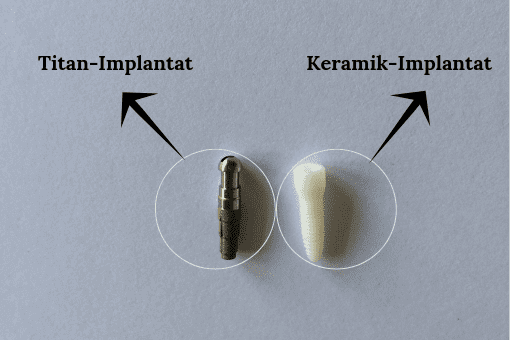 Keramik-Implantat vs Titan-Implantat