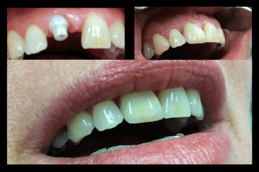 Keramik-Implantat Vorher Nachher - Zahnarzt Schwabach
